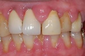 腫脹した歯茎
