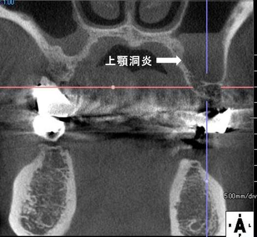 上顎洞炎1